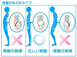 彦根市かがりの整骨院脊柱管狭窄症の説明イラスト