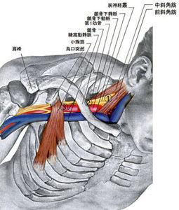 彦根市かがりの整骨院胸郭出口症候群の画像